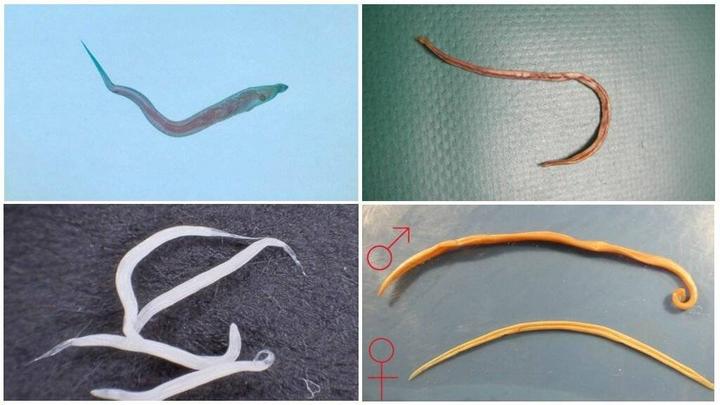 разновидности паразитов в организме человека