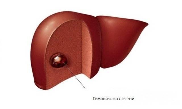 гемангиома печени симптомы признаки