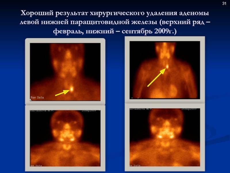 Аденома паращитовидной железы: причины заболевания, основные симптомы, лечение и профилактика