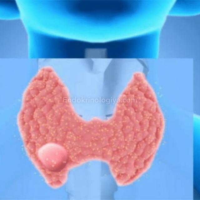 Что такое аденома щитовидной железы и лечение народными средствами