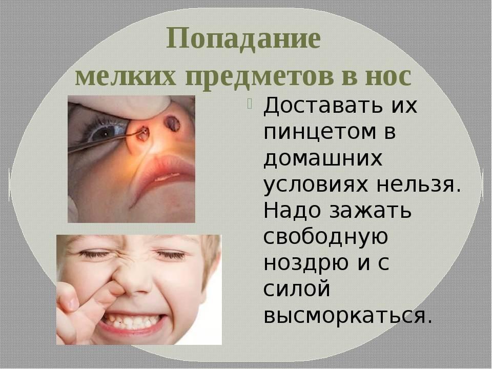 Инородные тела в носу: причины, симптомы, диагностика и лечение