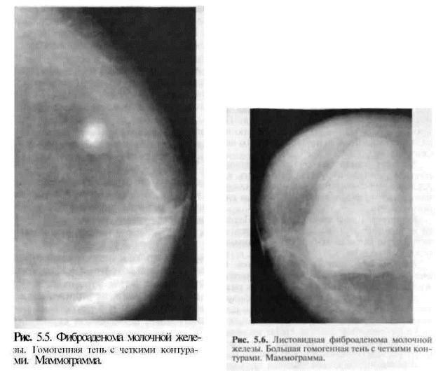 фиброаденома и эко