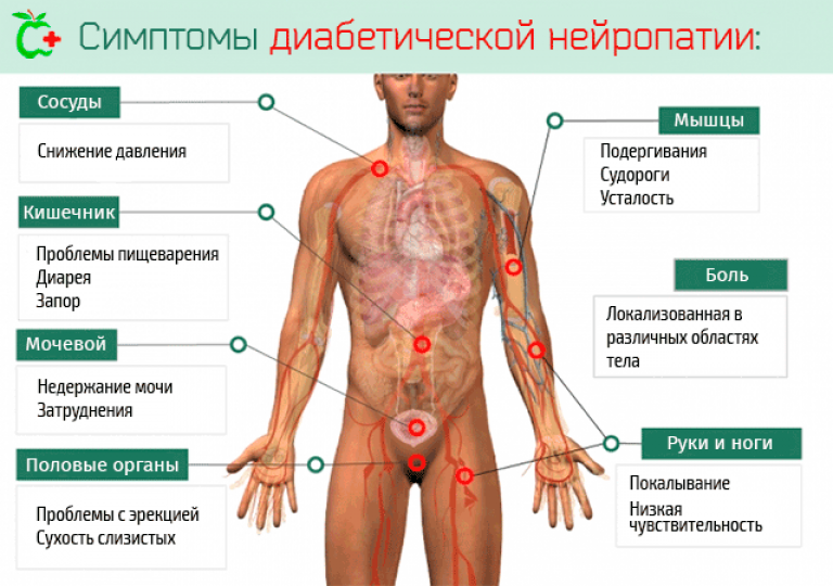 Диабетическая нейропатия. причины, симптомы, диагностика и лечение нейропатии