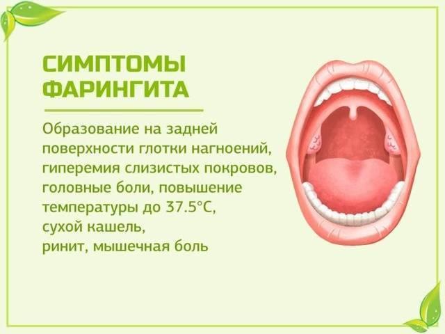 Бактериальный фарингит симптомы лечение