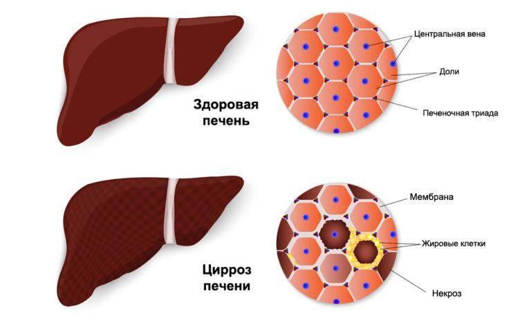 лечение лекарственного гепатита