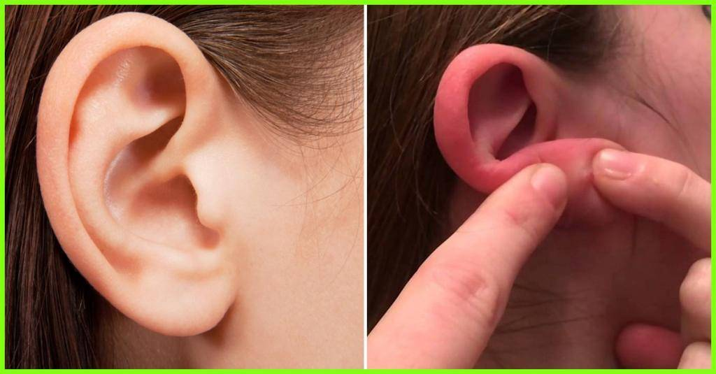 Болит мочка уха: лечение в домашних условиях