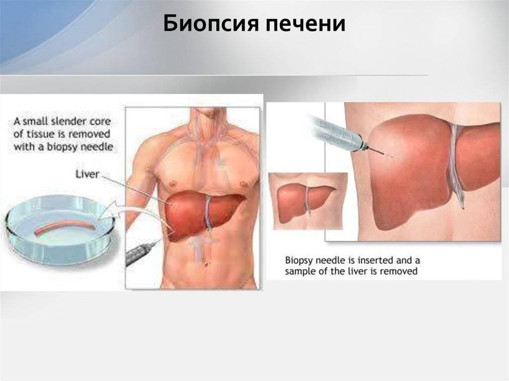Для чего проводят биопсию печени