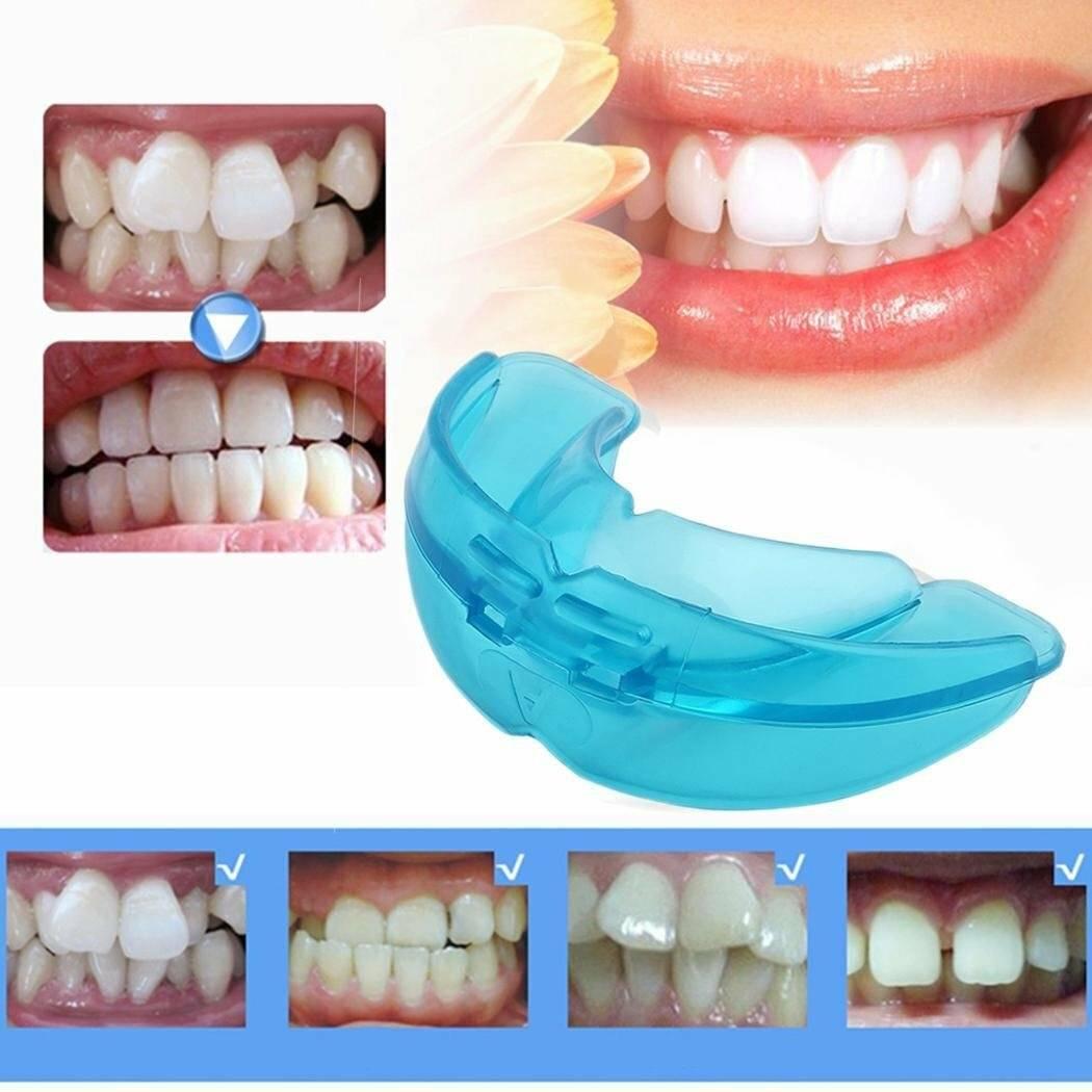 можно ли выровнять один зуб