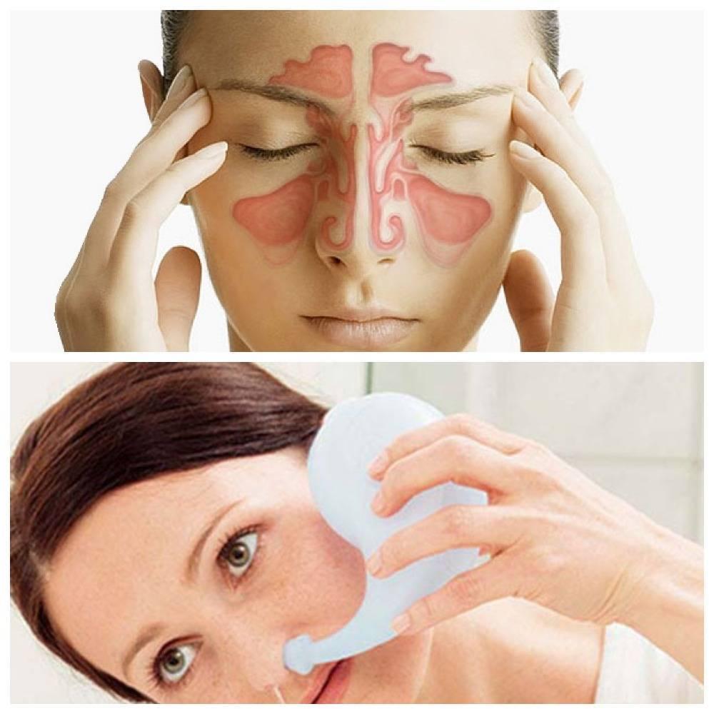 Симптомы и лечение вазомоторного ринита у взрослых