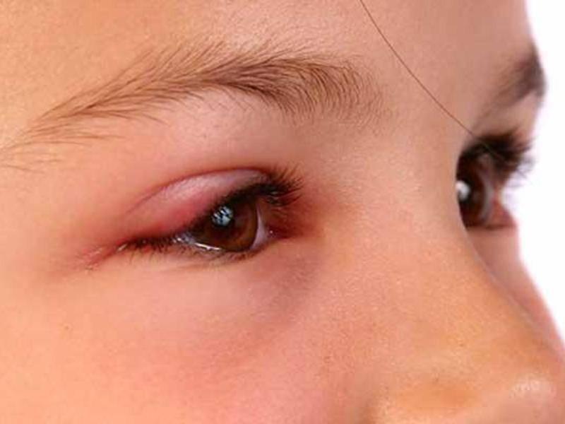 продуло глаз как лечить