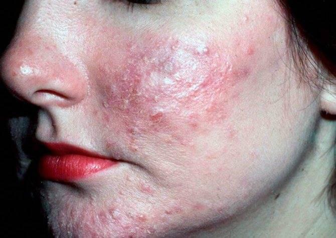 демодекс на лице симптомы