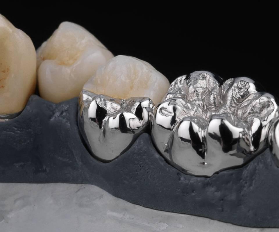 Металлокерамика на передние зубы — качественное протезирование, обзор цен