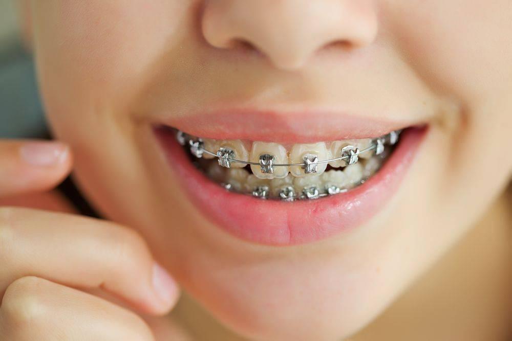 Больно ли поставить на зубы брекеты