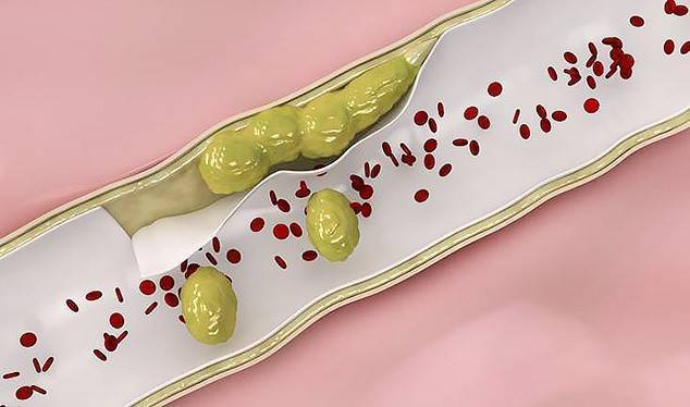 Какие продукты чистят сосуды и кровь от холестериновых бляшек — топ 20