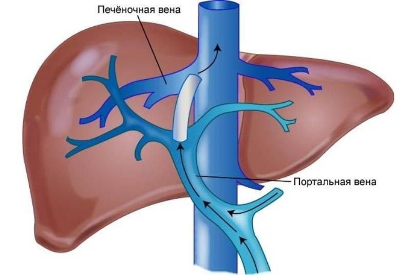 Портальная гипертензия при циррозе печени: причины и лечение
