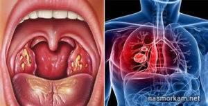 Что делать, если опухла гланда и стало больно глотать?