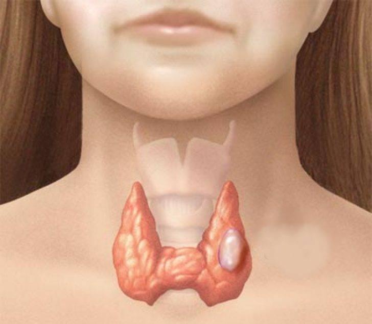 опухла щитовидная железа что делать