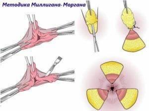Единственно возможный метод удаления запущенной формы геморроя — операция миллигана-моргана