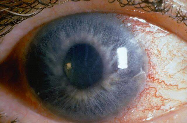 Открытоугольная глаукома: причины, симптомы, лечение и профилактика