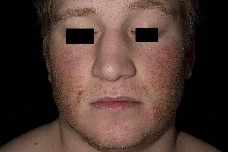 Передается ли детям себорейный дерматит