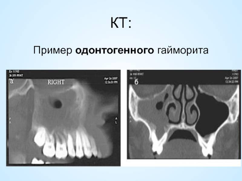 гайморит от зуба симптомы