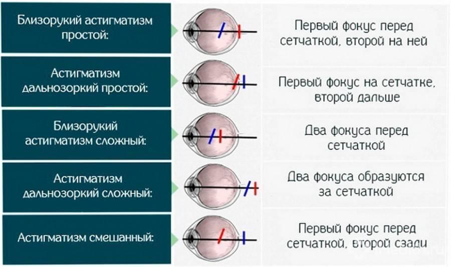 Лечим быстро астигматизм — проверенные методы
