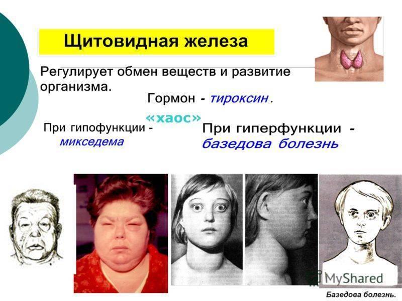 Что нужно знать о дефиците гормонов щитовидки?