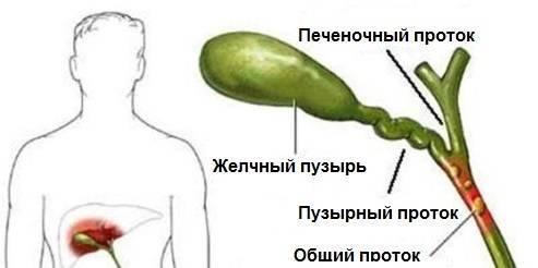 Чем отличается дискинезия по гипомоторному и гипермоторному типу