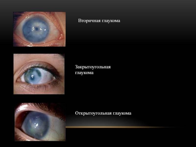 открытоугольная глаукома причины симптомы лечение и профилактика