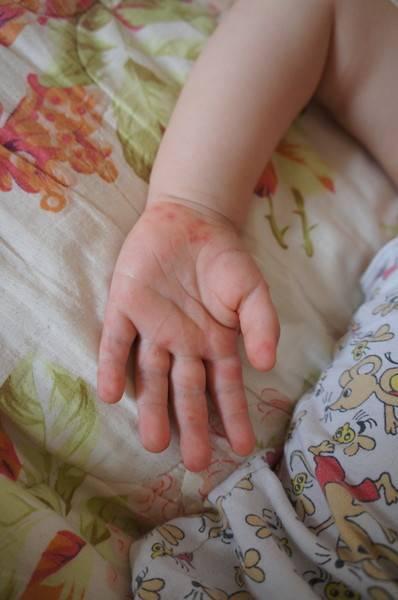 признаки чесотки у детей