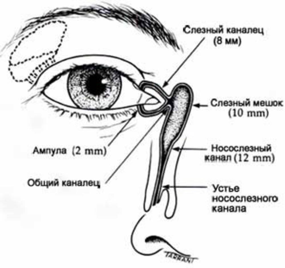 Непроходимость слезного канала (дакриоцистит)
