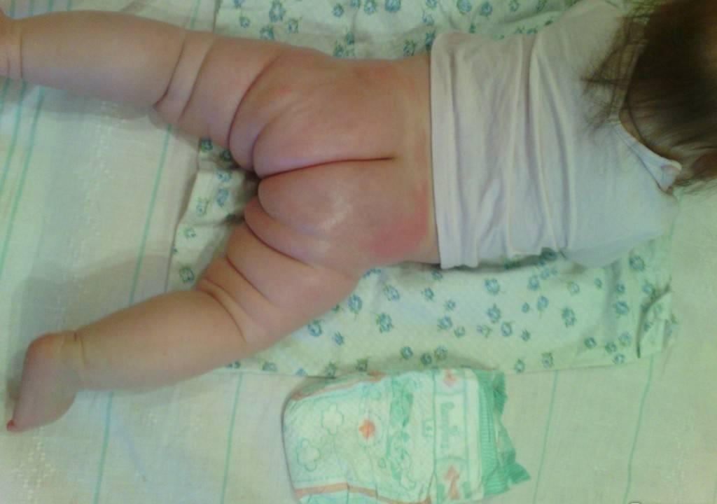 Беда под подгузником: что такое пеленочный дерматит и как его лечить у детей?