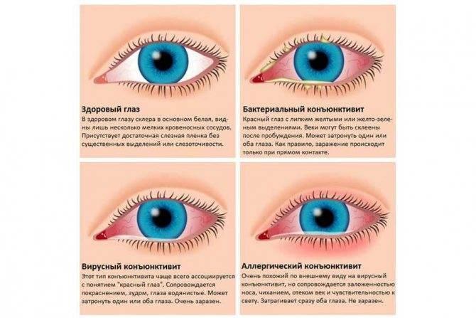 Сильно болят глаза слезятся красные