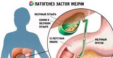 Застой желчи. симптомы и лечение у взрослых народными средствами, препаратами