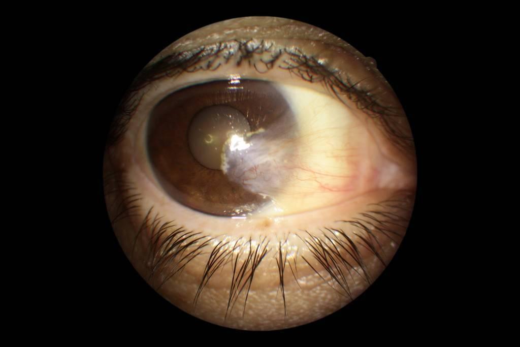 Птеригиум глаза лечение народными средствами