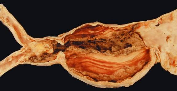 атеросклероз брюшной аорты симптомы лечение