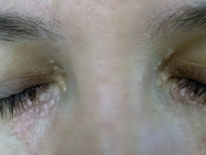 Опасность отложения холестерина под глазами и методы избавления от бляшек