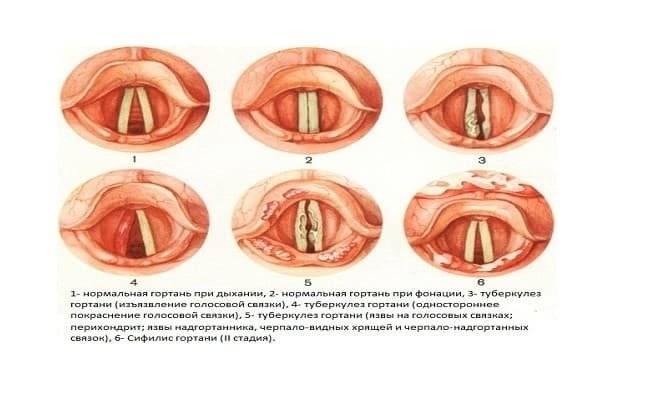 сифилис в горле