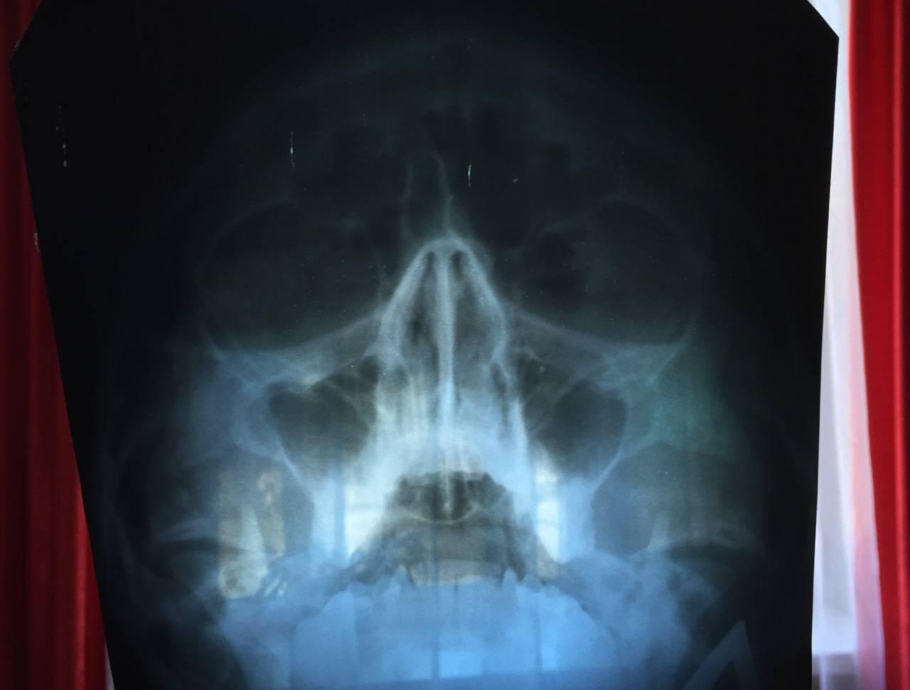 Болят пазухи носа без насморка: что делать и как лечить?