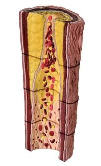 Атеросклероз сосудов: лечение, симптомы, причины, профилактика | болезни артерий | сосудистый центр им. т.топпера