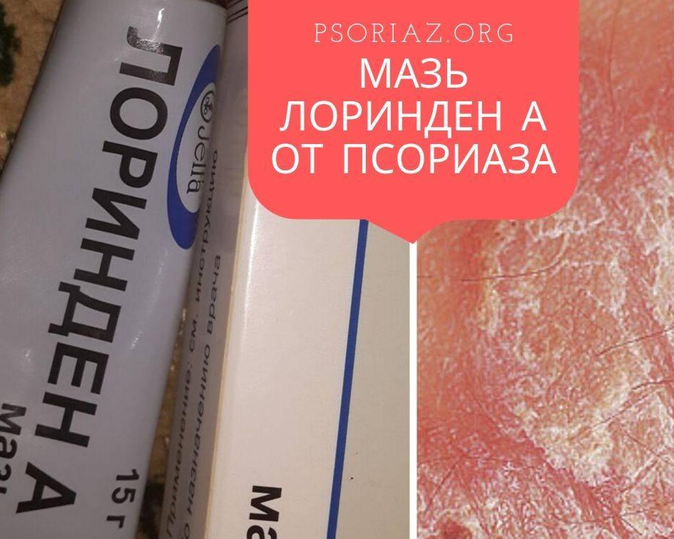 Препараты от псориаза на голове. какие самые эффективные? как применяются?