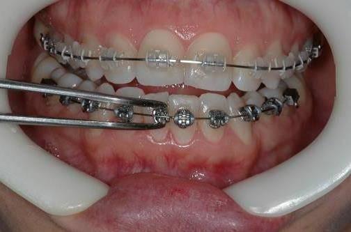 Натирает брекет — что делать если зубные конструкции натерли щеки