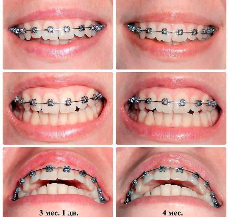 чистка зубов после брекетов