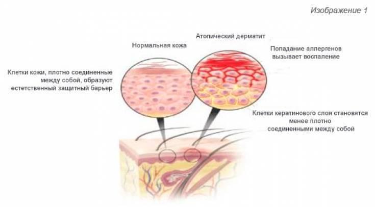 Чем можно быстро вылечить дерматит