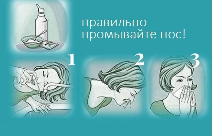 Промывка носа солевым раствором. рецепт, как делать шприцом