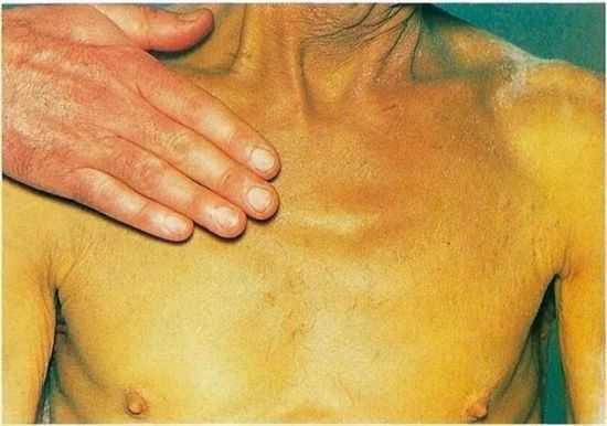 высыпания на коже при заболеваниях печени