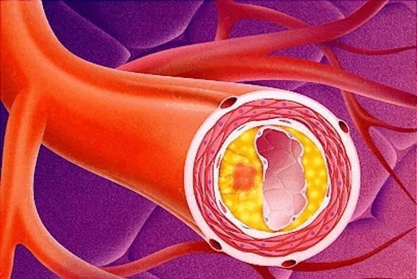 атеросклероз бляшки в сосудах