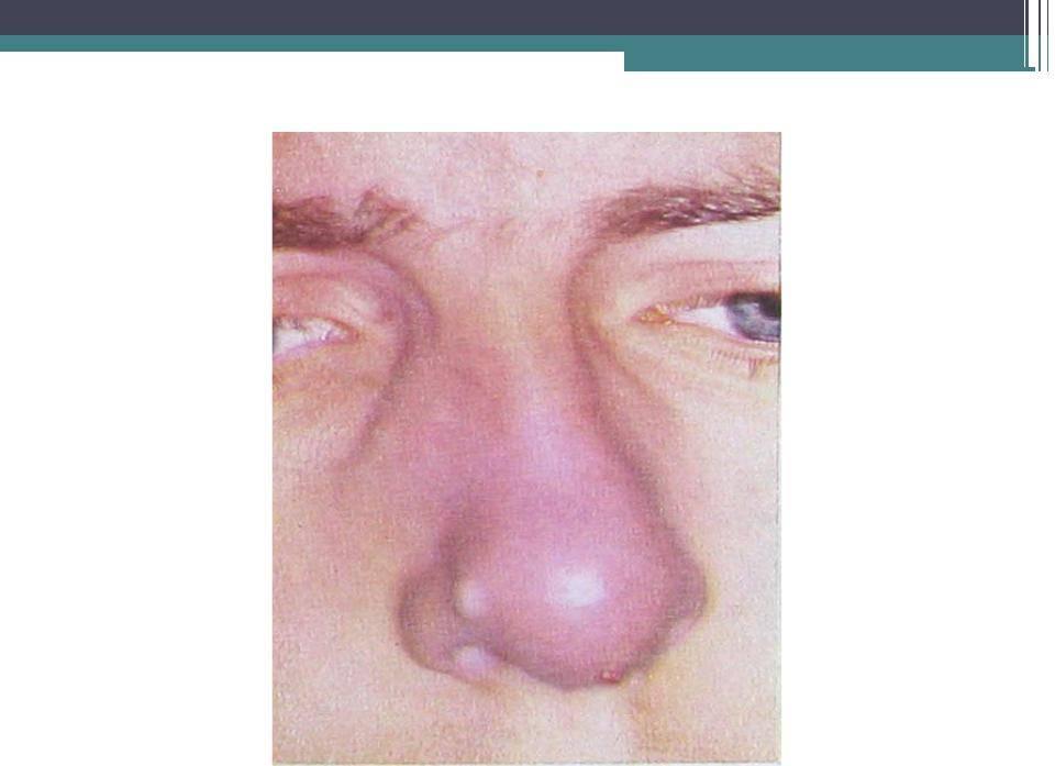 фурункул внутри носа