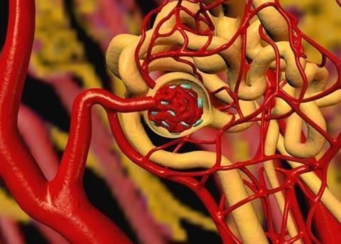 атеросклероз брахиоцефальных сосудов
