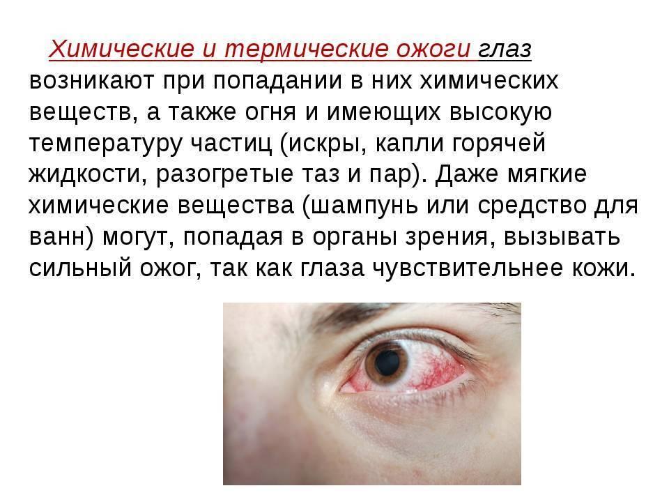 Что делать, если в глаз попал шампунь: опасно ли это, как предотвратить попадание шампуня в глаза